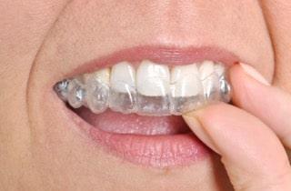 Orthodontics Invisalign